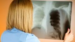 Новости Медицина - У иностранного студента в Казани выявили закрытую форму туберкулеза