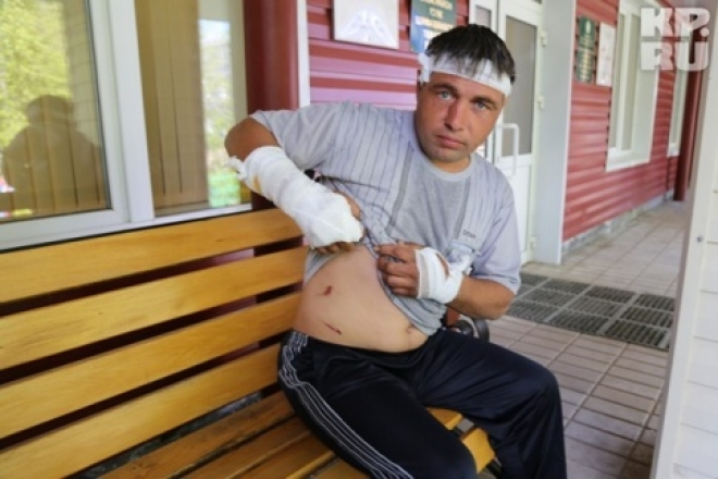 В Татарстане мужчина голыми руками отбился от бешеного медведя