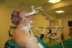 Новости  - С затылка казанца удалили опухоль размером с голову (18+)